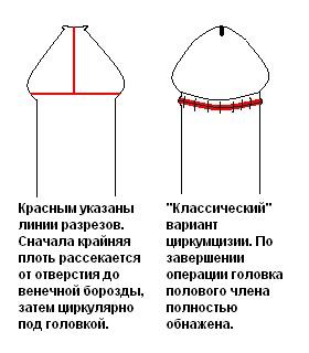 ne-otkrivaetsya-golovka-chlena