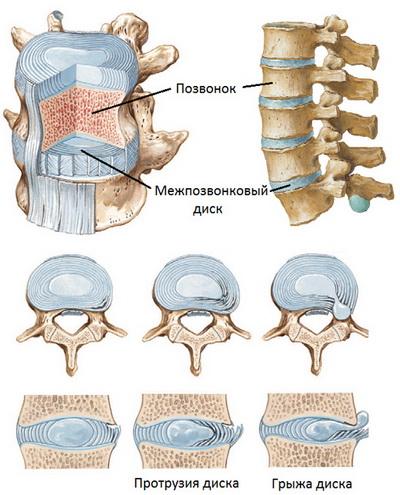 Что бывает если не лечить остеохондроз