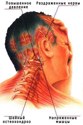 Причины снижения кровотока в сосудах головного мозга и как его ...