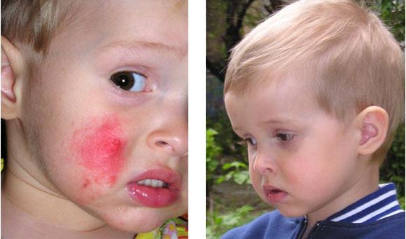 Как сделать так чтобы у тебя появилась аллергия